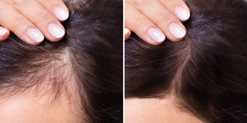 hair loss solution in hair